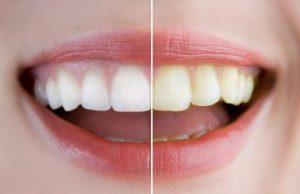 teeth whitening in st brelade jersey